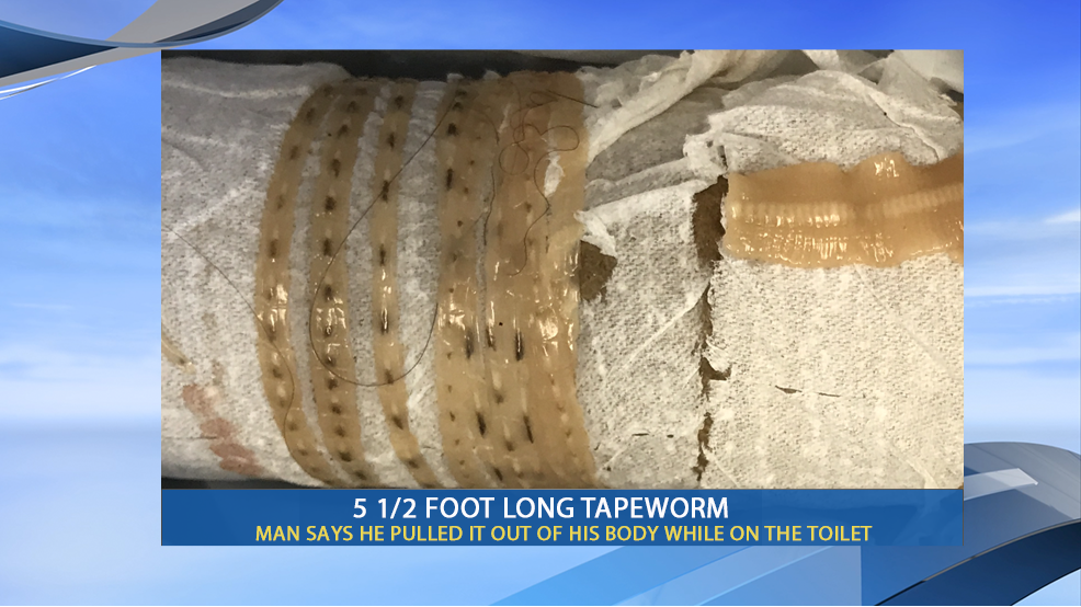 Fresno man pulls out a 5-foot tapeworm while on the toilet ...