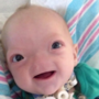'Miracle baby' Eli, born without a nose, dies at 2
