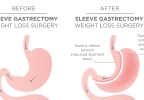 What is Gastric Sleeve surgery? - brought to you by Lakeland Health