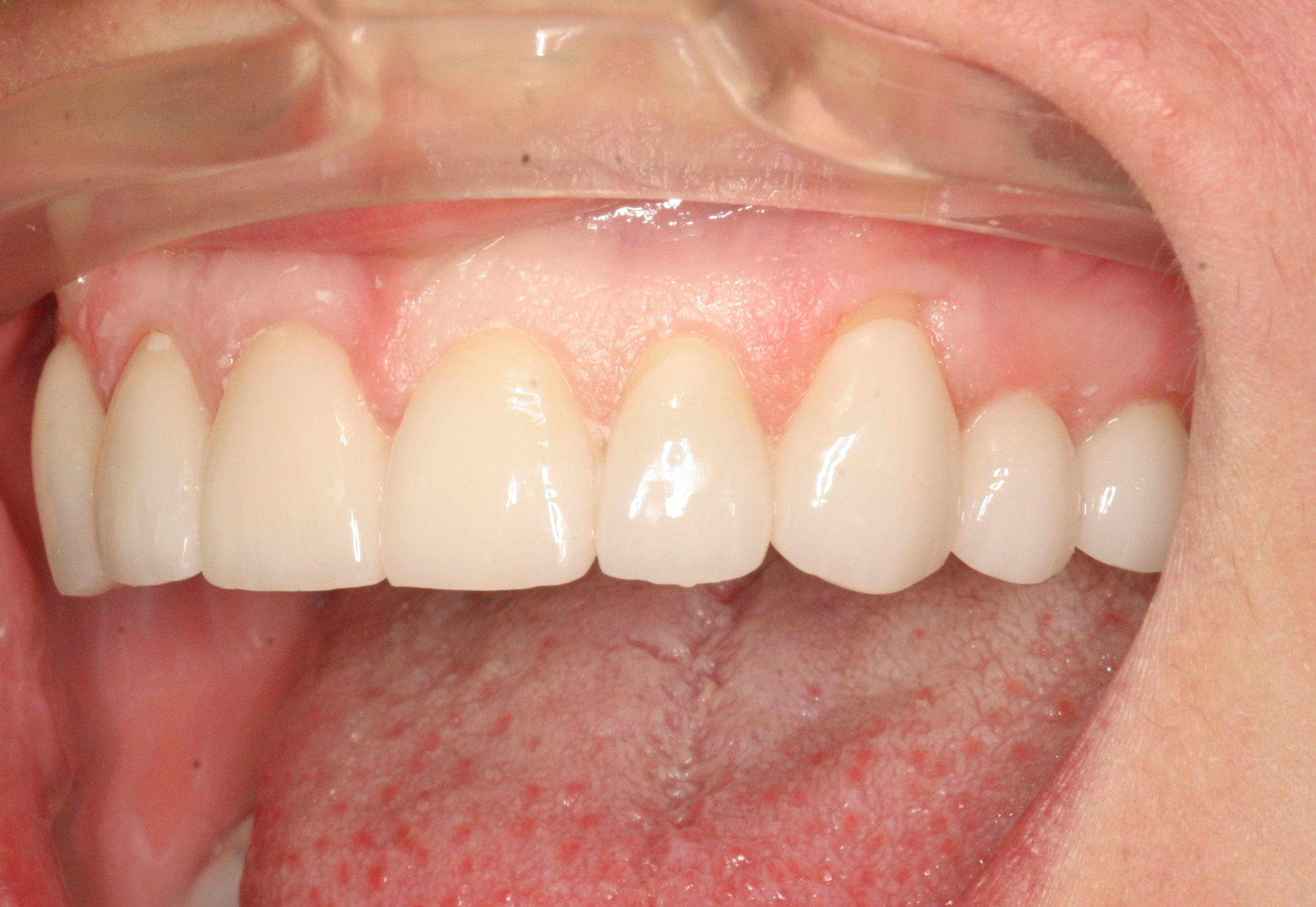 Jodi Bolka's gum was receding at her right canine tooth. (Blodgett Dental Care)<p></p>
