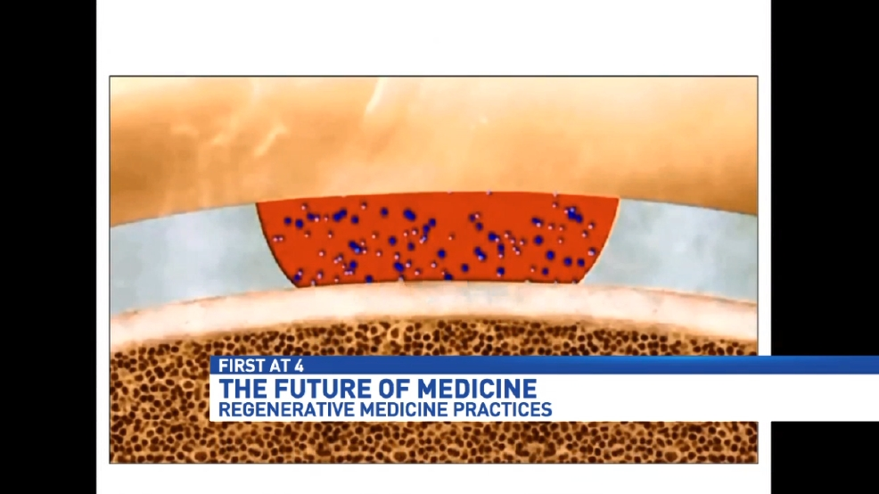 Plasma and stem cells: The future of regenerative medicine | WEAR