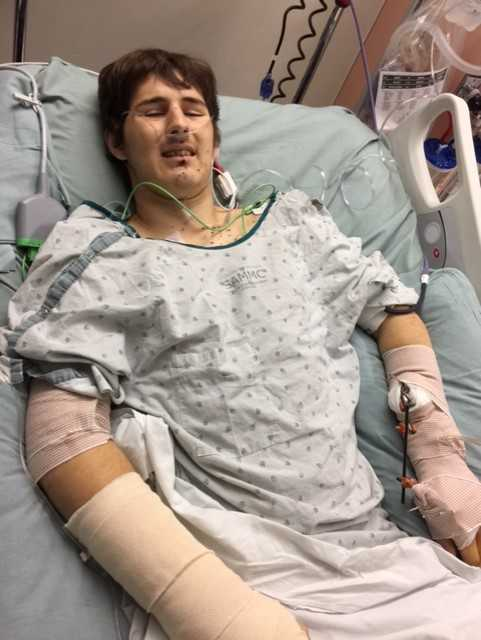 Zachary Poston, 18, underwent 8 hours of surgery at Brooke Army Medical Center on Tuesday.{&amp;nbsp;}<p></p>
