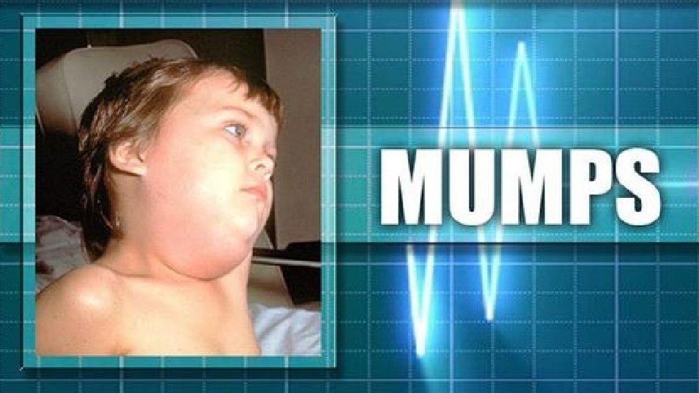 County Line Auto >> Common cold or a case of the mumps? Here's what symptoms ...