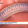Chambersburg Hospital offers new treatment for coronary artery disease