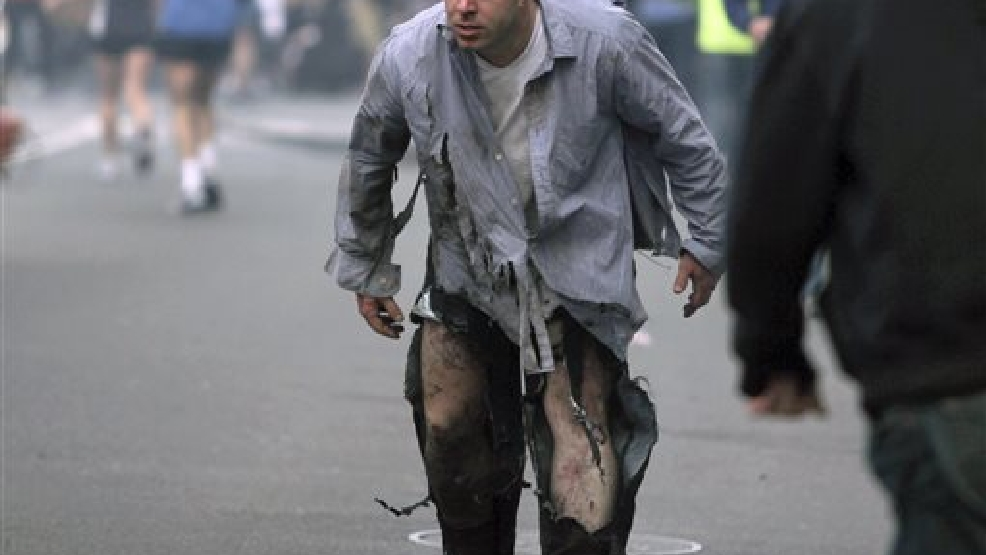In this April 15, 2013, file photo, provided by The Daily Free Press and photographer Kenshin Okubo, Boston Marathon bombing victim James Costello staggers away in his torn clothing from the finish area in Boston. Costello married Krista D'Agostino Saturday, Aug. 23, 2014 ,at a hotel in Boston. The couple met at Spaulding Rehabilitation Hospital where D'Agostino worked as a nurse and helped him recover from his burns and injuries. (AP Photo/The Daily Free Press, Kenshin Okubo, File)