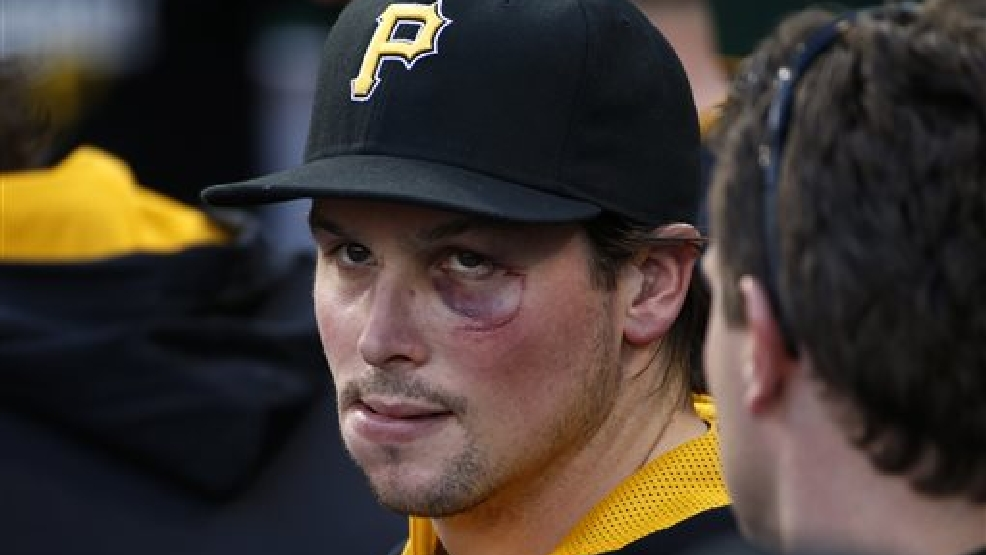 Pittsburgh Pirates' Travis Snider sits in the dugout before a baseball game against the Cincinnati Reds in Pittsburgh Monday, April 21, 2014. Snyder is sporting the cut and bruise on his face from a punch from Milwaukee Brewers'  Martin Maldonado during a brawl during the third inning of Sunday's baseball game between the Brewers and Pirates. (AP Photo/Gene J. Puskar)