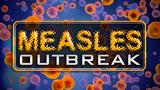 Health officials: Patient in DC diagnosed with measles